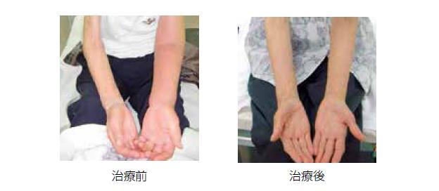 静脈 失敗 下肢 瘤 手術